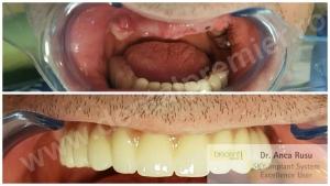 Dr. Anca Rusu - DINTI INTR-O ZI - Restaurare completa dantura maxilar