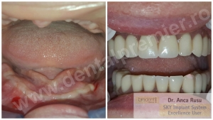 Dr. Anca Rusu - DINTI INTR-O ZI - Restaurare completa dantura maxilar + mandibula