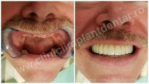 DINTI INTR-O ZI - Restaurare dantura maxilar