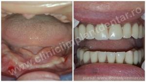 DINTI INTR-O ZI - Restaurare dantura maxilar + mandibula
