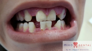 implant-dentar-rapid-dinti-intr-o-zi-bucuresti-miko-dental-1
