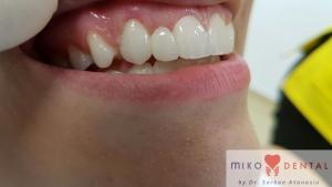 implant-dentar-rapid-dinti-intr-o-zi-bucuresti-miko-dental-2