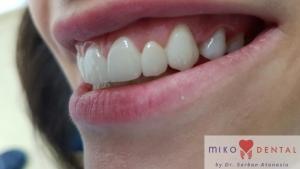 implant-dentar-rapid-dinti-intr-o-zi-bucuresti-miko-dental-3_0