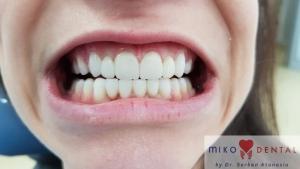 implant-dentar-rapid-dinti-intr-o-zi-bucuresti-miko-dental-4