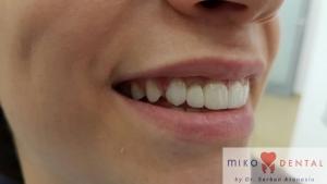 implant-dentar-rapid-dinti-intr-o-zi-bucuresti-miko-dental-5
