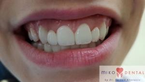 implant-dentar-rapid-dinti-intr-o-zi-bucuresti-miko-dental-8