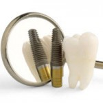 Alegand corect implantul dentar, puteti economisi pana la 70% din costuri