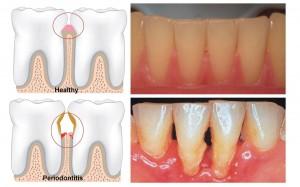 cauzele parodontozei si tratement