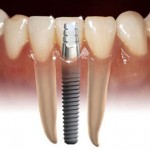 Ce este si ce presupune un implant dentar?