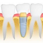 Oferte preturi implanturi dentare / Consultatie stomatologica online / Programari