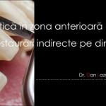 """Curs """"Estetica in zona anterioara prin restaurari indirecte pe dinti"""", 16 mai 2015, Bucuresti"""