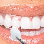 Fatetele dentare: Zambet de vedeta cu tehnologia DSD – Digital Smile Design!
