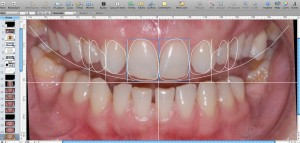 fatete dentare cu digital smile desing