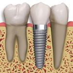 Implant dentar pasi | Realizarea implantului