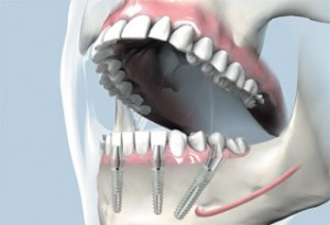 implant dentar rapid pret fast & fixed