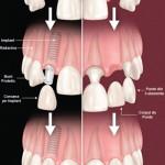 Avantajele implanturilor dentare fata de puntile sau protezele dentare