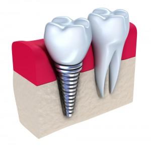 implantologie dentara bucuresti plata in rate