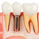 avantaje implanturi dentare arata natural estetic
