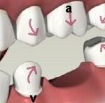De ce trebuie sa inlocuim cat mai repede un dinte lipsa?