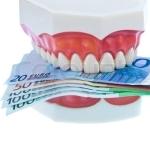 Lista preturi implanturi dentare