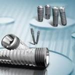 promotii si reduceri preturi implanturi dentare