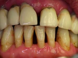tratament laser parodontoza