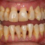 parodontoza tratament laser simptome cauze