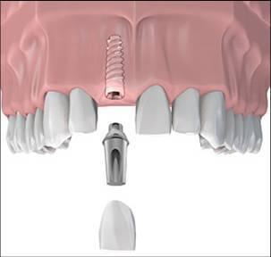 Pasii realizarii implantului dentar