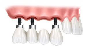 pret-coroana-dentara-pe-implant
