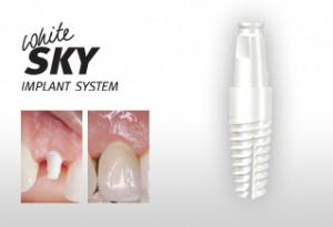 pret implanturi dentare bredent zirconiu
