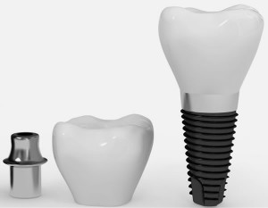Componente pret implant dentar