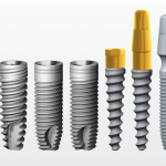 Implanturile dentare Alpha Bio: caracteristici, beneficii, oferte preturi clinici