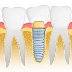 promotii implanturi dentare ieftine cursuri implantologie orala