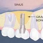 Operatia de sinus lift – ridicarea membranei sinusale prin aditie de os in vederea efectuarii implantului dentar