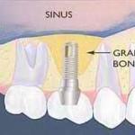 Operatia de sinus lift intern in vederea inserarii implantului dentar