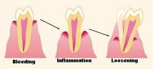 stadiile parodontozei caderea dintilor
