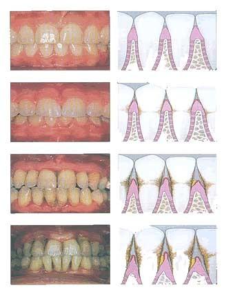 stadiile parodontozei operatie tratament prevenire