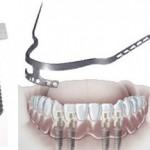 Care sunt tipurile de implanturi dentare utilizate in implantologia dentara?