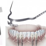 Tipuri implanturi dentare