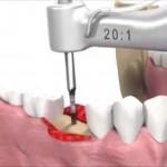 Video cu pasii realizati de specialisti pentru inserarea implantului dentar